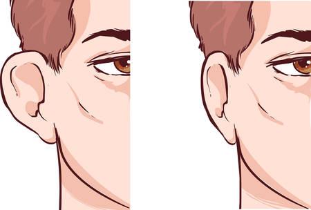 oido: apaisada blanco Ilustración vectorial de un oído Pinnin otoplastia Vectores