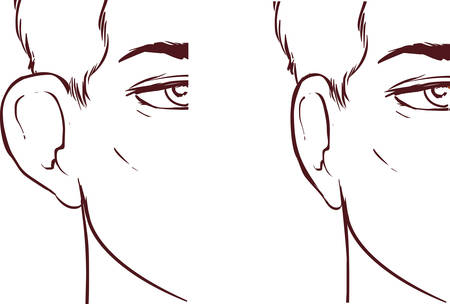 white backround Vector illustration of a Ear Pinnin Otoplasty
