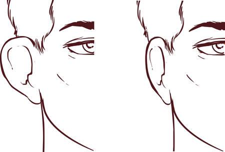 protruding: white backround Vector illustration of a Ear Pinnin Otoplasty