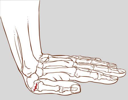sfondo bianco illustrazione vettoriale di una frattura mano Vettoriali