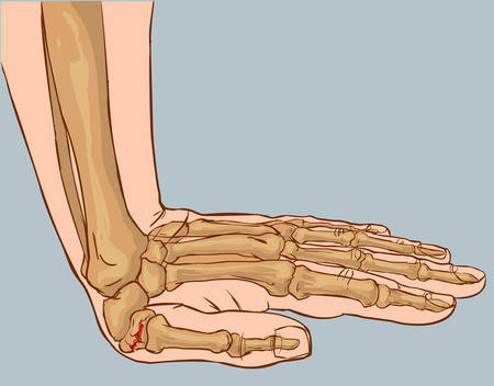 sprain: white background vector illustration of a hand fracture Illustration