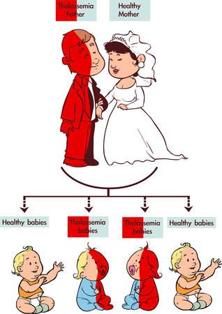 leucemia: Ilustración vectorial de una infografía talasemia rasgo Vectores