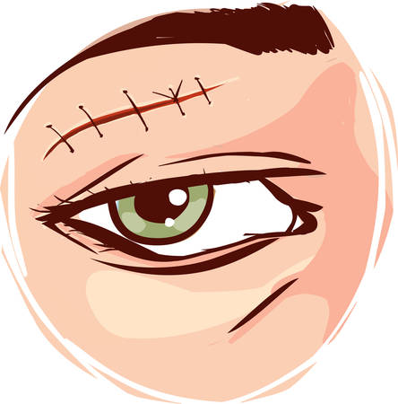 skin injury: Vector - Illustration of a receiving first aid, injury or cut and sutured face