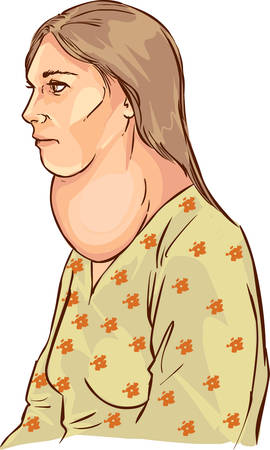 white backround Vector illustration of a goiter Banco de Imagens - 52746911