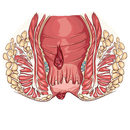 sphincter: white backround Vector illustration of a hemorrhoid