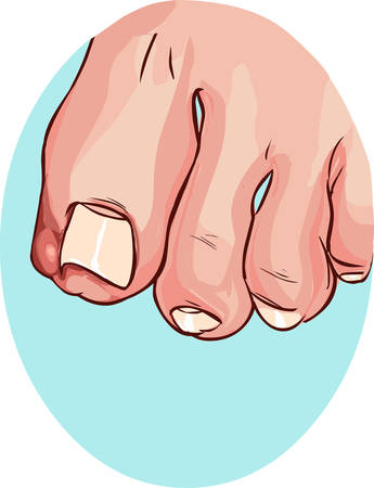 blue backround Vector illustration of a Ingrown Toenail