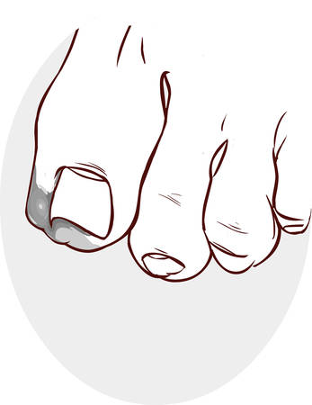 toenail: blue backround Vector illustration of a Ingrown Toenail Illustration