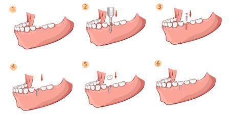 Ilustración vectorial de un Ilustración de un implante dental Ilustración de vector