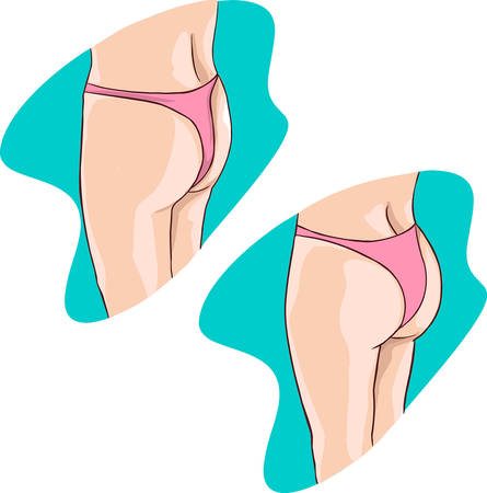 buttocks: green backround vector illustration of a buttocks implants Illustration