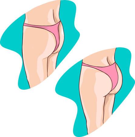 grosse fesse: vert vecteur backround illustration d'un fesses implants Illustration