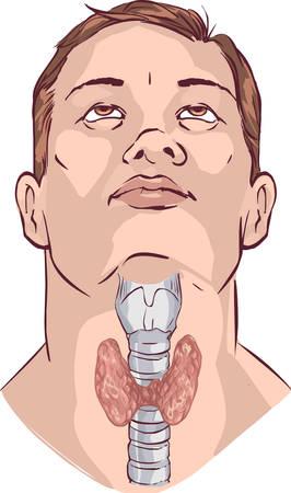 hypothyroidism: vector illustration of a Vector Thyroid gland and larynx
