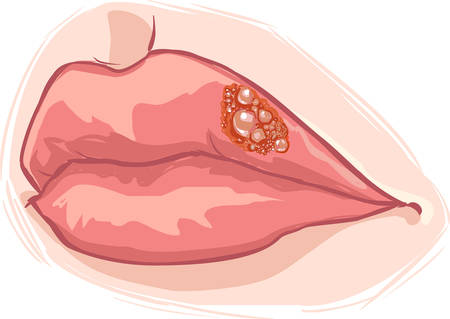 white background vector illustration of a lip herpes Stock Illustratie