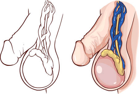testicle: white background vector illustration of a  Varicocele