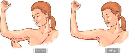 muscular control: white background vector illustration of a loose handle