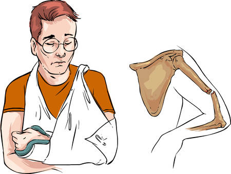 fracture arm: vector illustration of a guy with an arm fracture Illustration