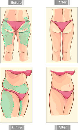 tight body: yellow background vector illustration of a liposuction