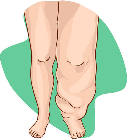 vector illustration of a Lymphedema of the disease