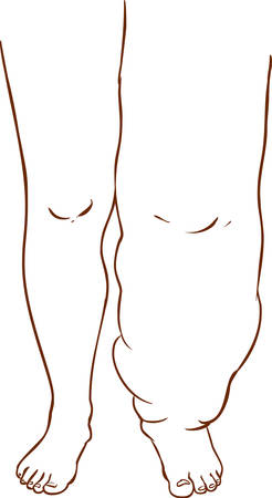 excess: vector illustration of a Lymphedema of the disease