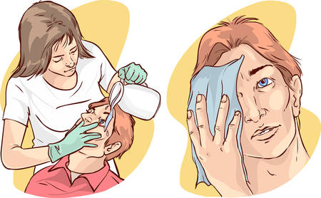 dilute: vector illustration of a nurse washing the patients eyes with water