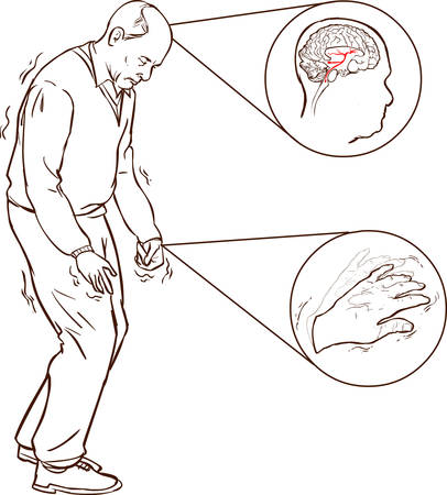 sad cartoon: vector illustration of old man with Parkinson symptoms difficult walking