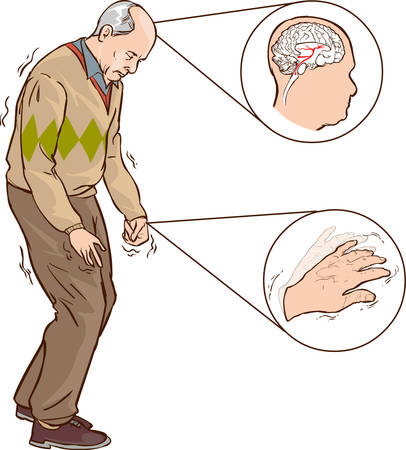 obtained: vector illustration of old man with Parkinson symptoms difficult walking