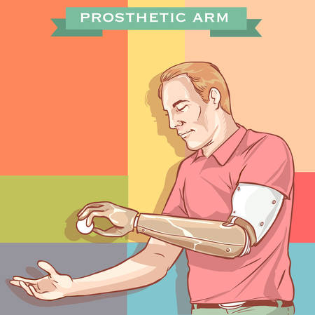 prosthetic: vector illustration of a Man using His Prosthetic Arm