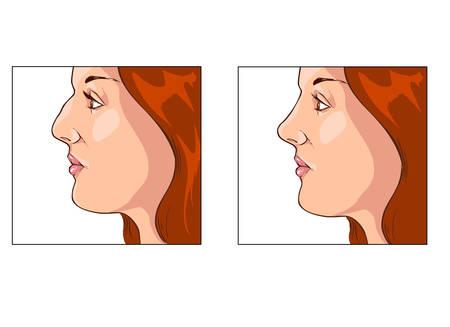 chirurgo: illustrazione vettoriale di una rinoplastica prima e dopo Vettoriali