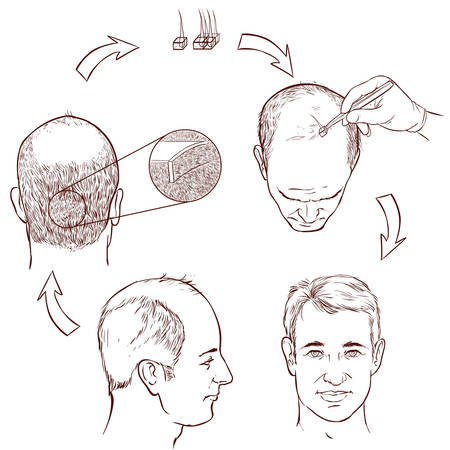 transplantation: white background vector illustration of a hair transplantation
