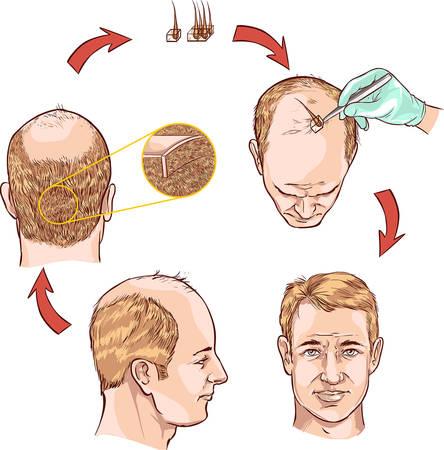 cabello: fondo blanco ilustración vectorial de un trasplante de cabello