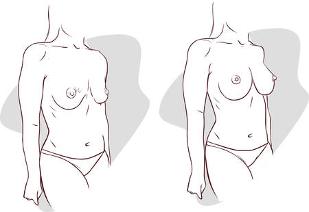 boobs: vector illustration of a  Breast Uplift before and after treatment