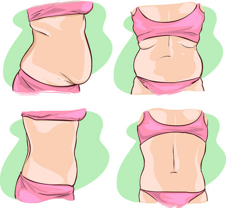 naked belly: vector illustration of a Fat belly before and after treatment. Illustration