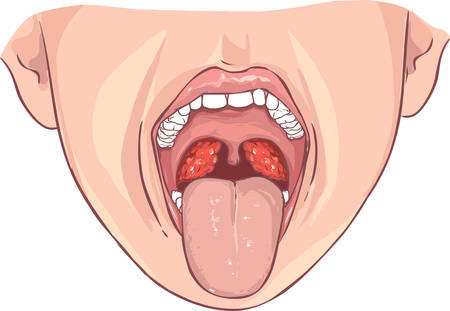 Fond blanc illustration vectorielle d'une amygdalite bactérienne Banque d'images - 52751245