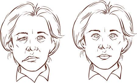 nervios: fondo blanco ilustración vectorial de una ilustración desequilibrada facial Vectores