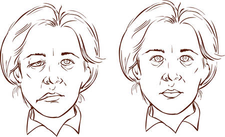 paralysis: white background vector illustration of a  facial lopsided illustration