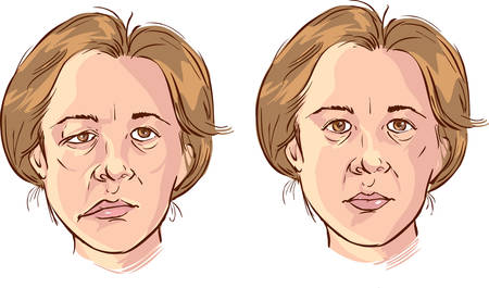 weakness: white background vector illustration of a  facial lopsided illustration