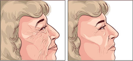 wrinkle: white background vector illustration of a  face wrinkles Illustration