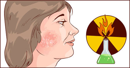 redness: Vector illustration of a chemical burns to face