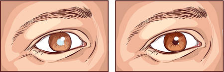 visually: detailed vector medical  illustration of a cataract
