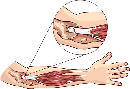 damage: Tennis elbow - tear in the common extensor tendon of the arm