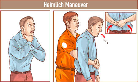 Clip Art of One man stands behind the conscious victim with his hands in the proper position on the victim's abdomen to perform the Heimlich maneuver Vectores