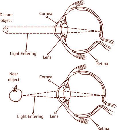 shortsightedness: Myopia and normal vision ( color vector illustration ) Illustration