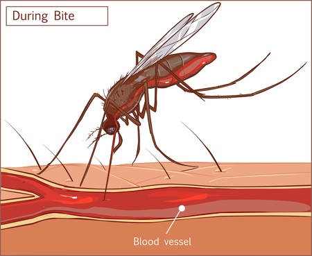 suck: Editable vector illustration of a mosquito sucking blood from human skin