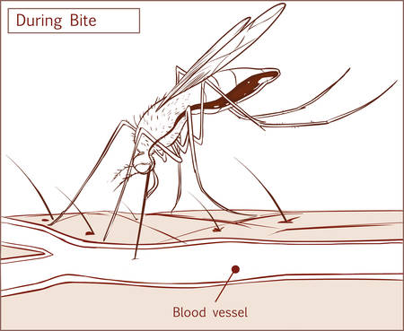 bloodsucker: Editable vector illustration of a mosquito sucking blood from human skin