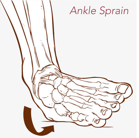 vector illustration of a sprained ankle on blue
