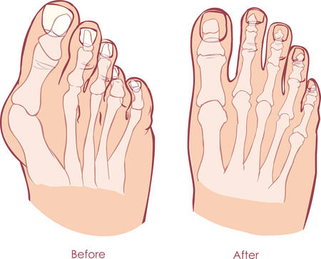 Human foot deformity. Hallux valgus and tailors bunion.