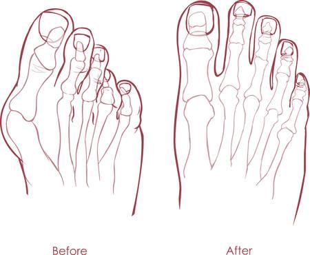 displaced: Human foot deformity. Hallux valgus and tailors bunion.