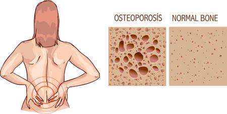 density: Osteoporosis, human bone anatomy. Medical illustration healthy bone and unhealthy bone Illustration
