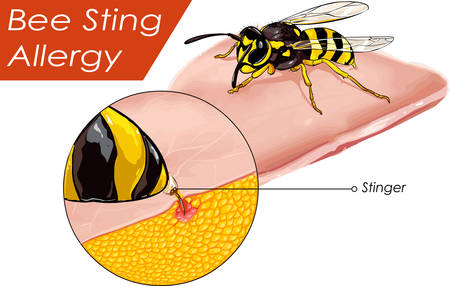 Vector illustration of a Bee sting allergy Illustration