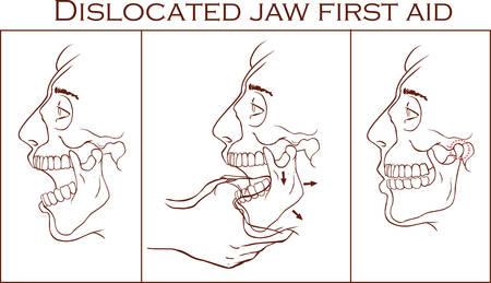 luxacion: Ilustración vectorial de una primera ayuda dislocó la mandíbula