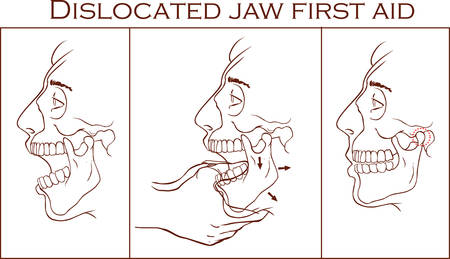 luxacion: Vector illustration of a first aid dislocated Jaw Vectores